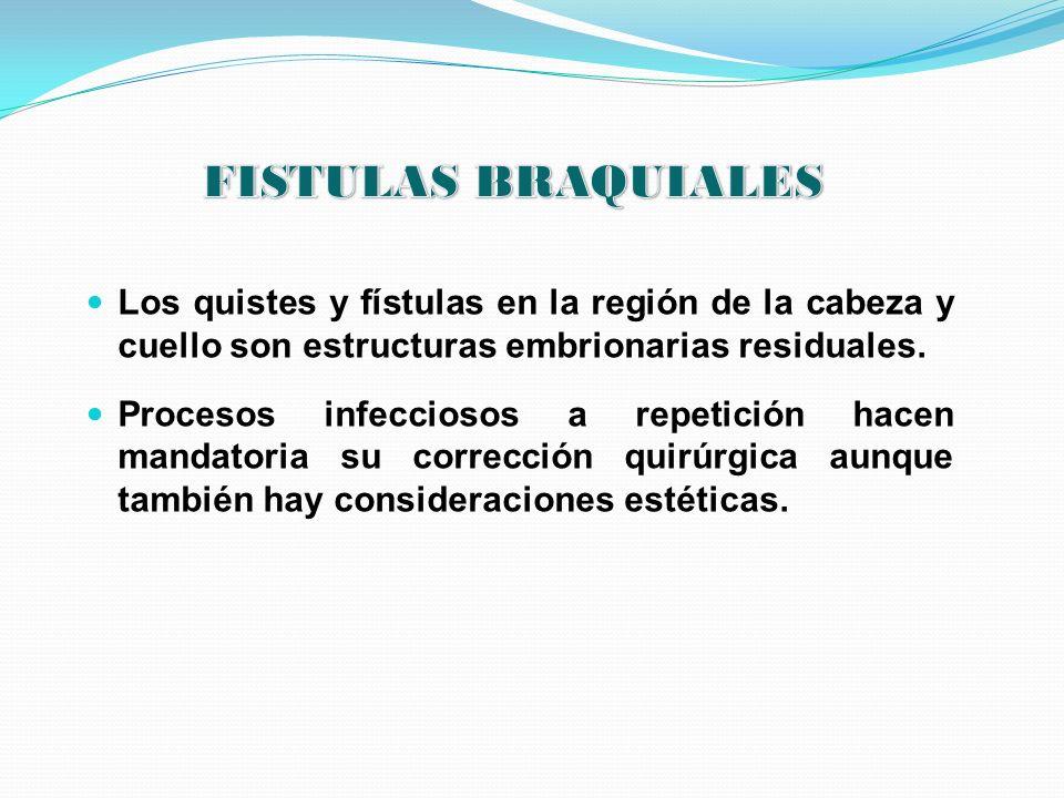 FISTULAS BRAQUIALES Los quistes y fístulas en la región de la cabeza y cuello son estructuras embrionarias residuales.