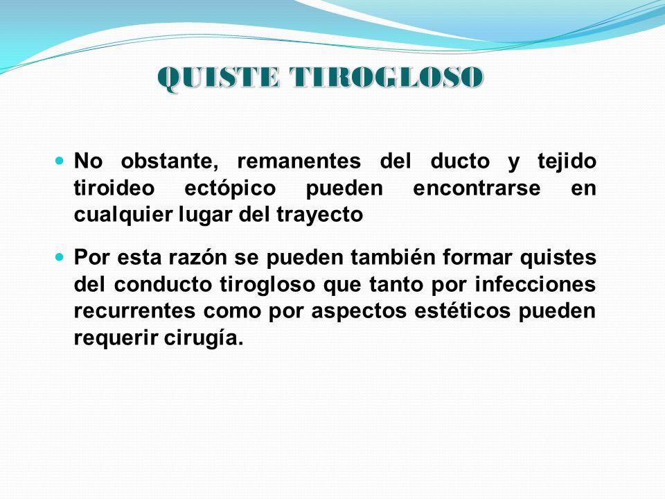 QUISTE TIROGLOSO No obstante, remanentes del ducto y tejido tiroideo ectópico pueden encontrarse en cualquier lugar del trayecto.