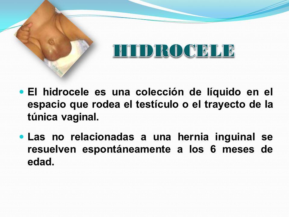 HIDROCELE El hidrocele es una colección de líquido en el espacio que rodea el testículo o el trayecto de la túnica vaginal.