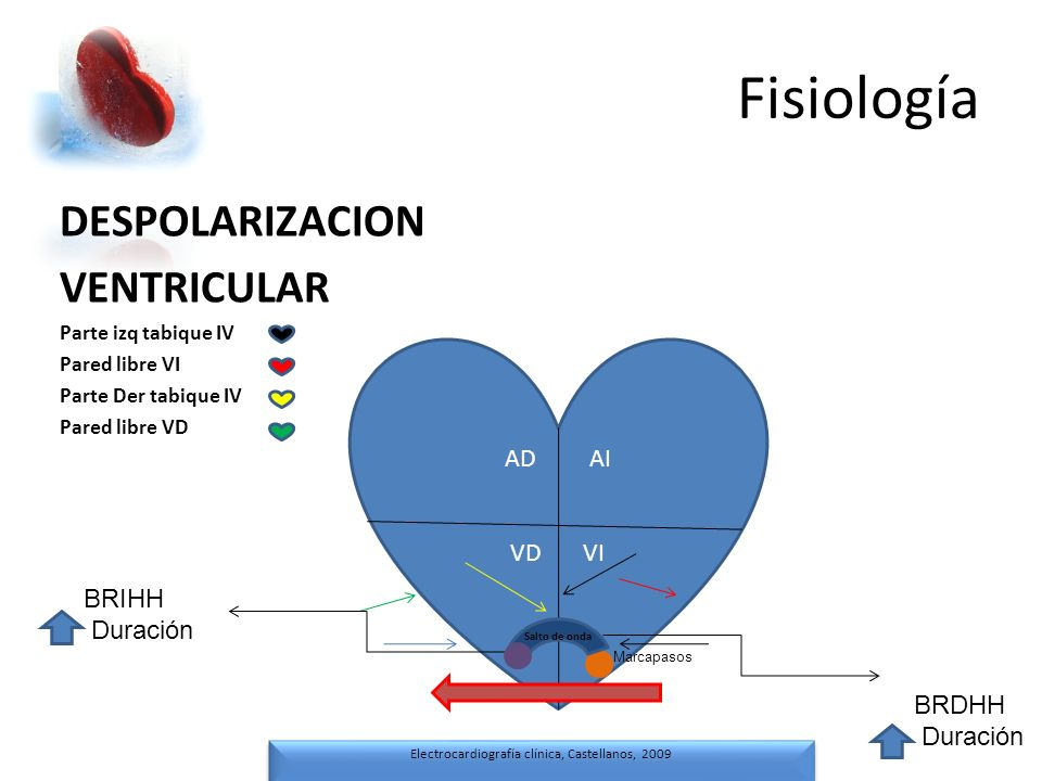 Electrocardiografía clínica, Castellanos, 2009