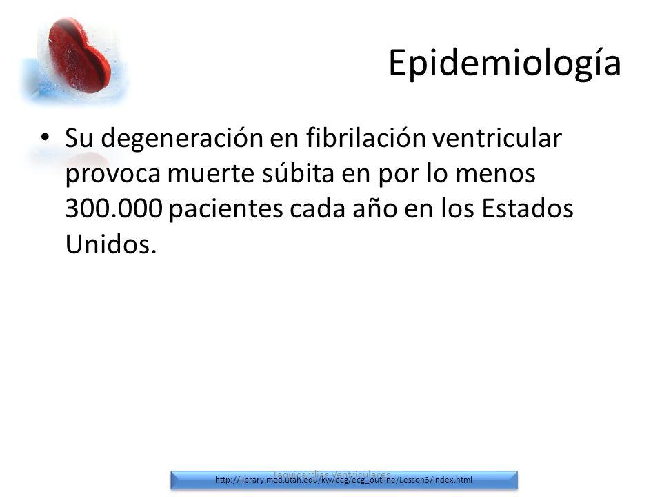 Taquicardias Ventriculares