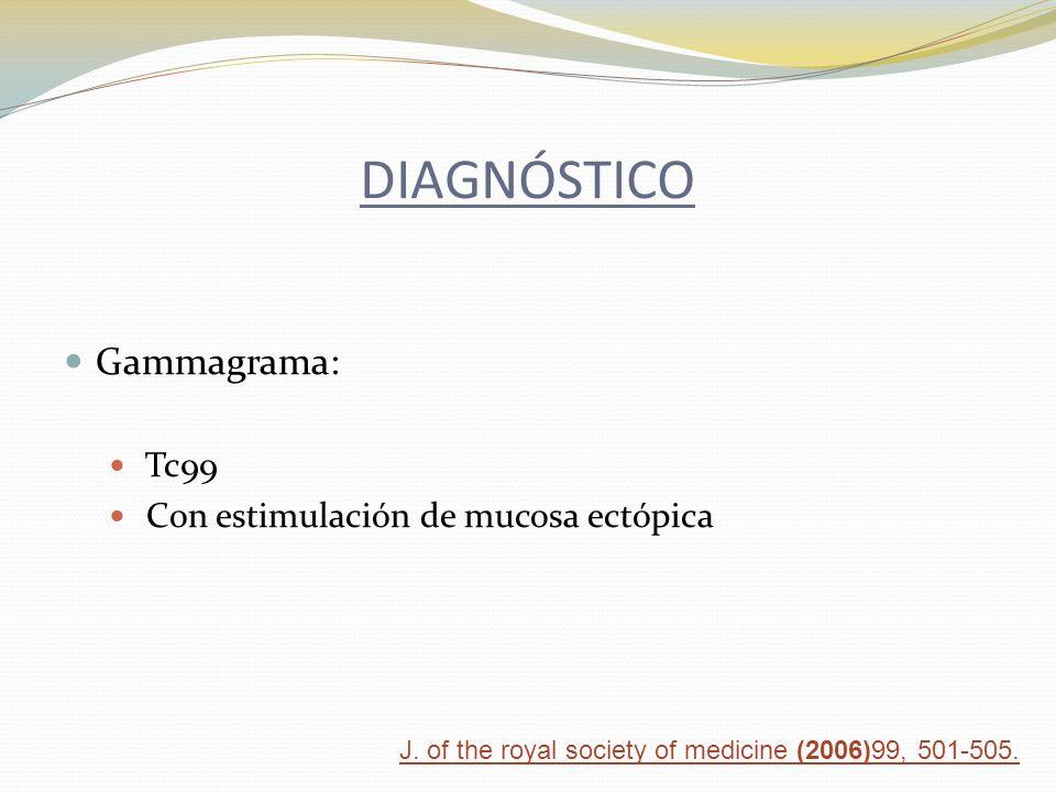 DIAGNÓSTICO Gammagrama: Tc99 Con estimulación de mucosa ectópica