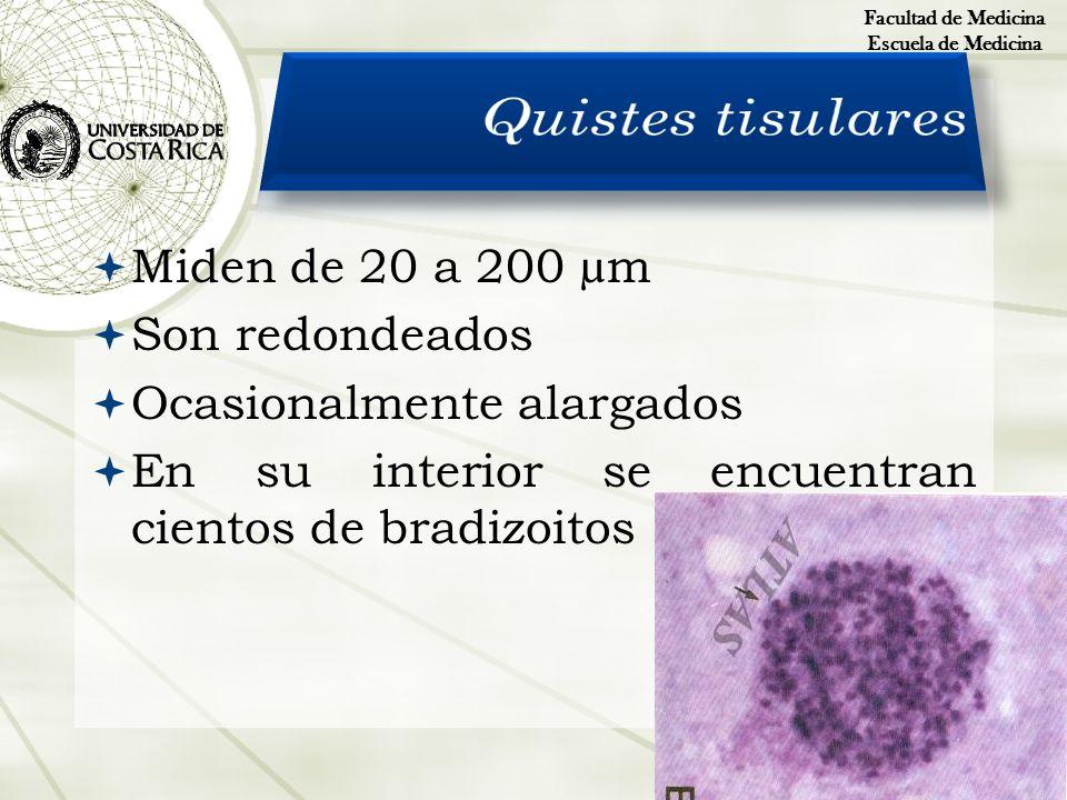 Quistes tisulares Miden de 20 a 200 µm Son redondeados