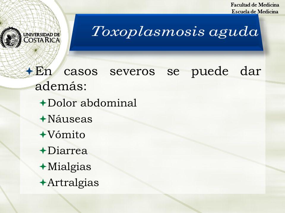 Toxoplasmosis aguda En casos severos se puede dar además: