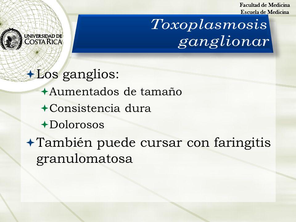Toxoplasmosis ganglionar