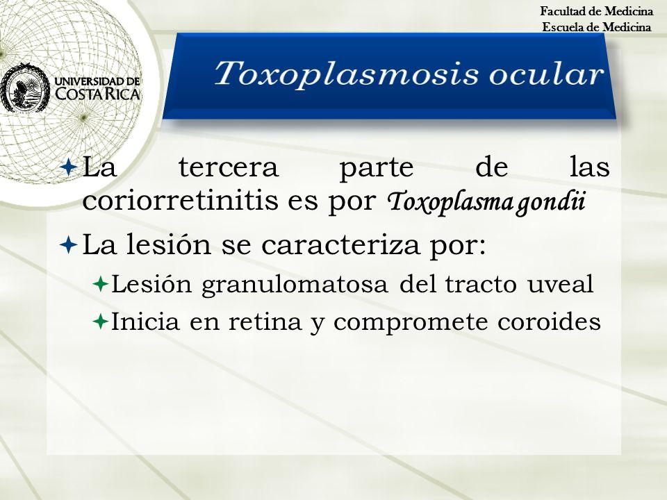 Facultad de MedicinaEscuela de Medicina. Toxoplasmosis ocular. La tercera parte de las coriorretinitis es por Toxoplasma gondii.