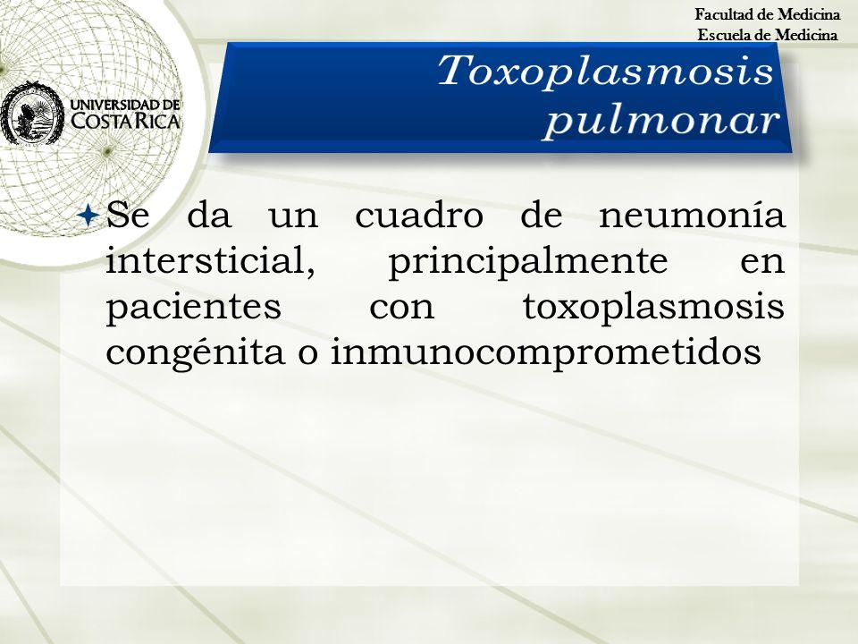 Toxoplasmosis pulmonar
