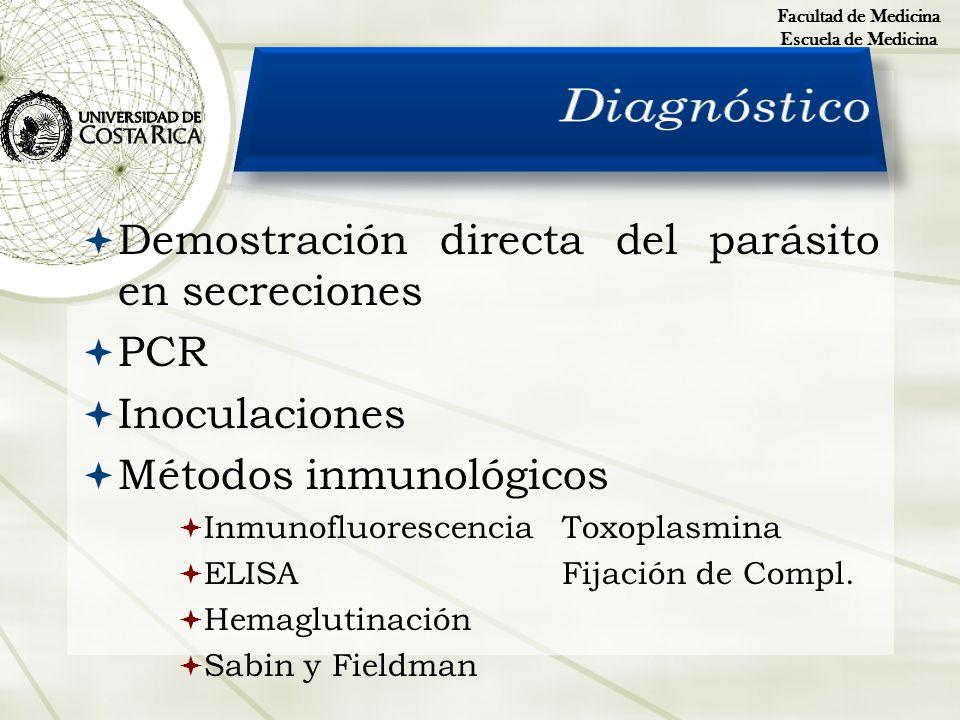 Diagnóstico Demostración directa del parásito en secreciones PCR