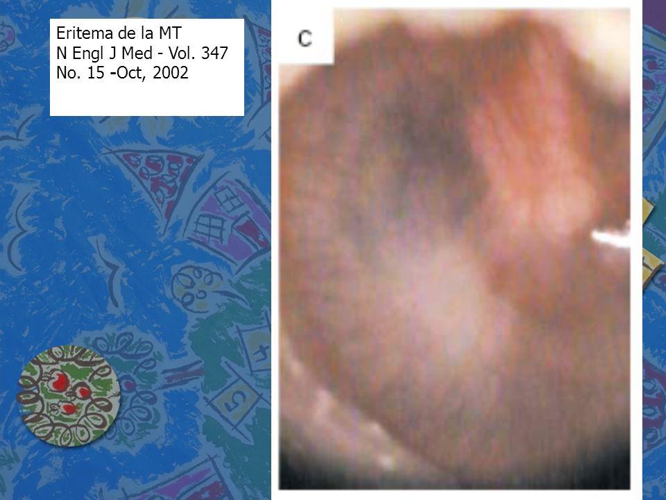 Eritema de la MT N Engl J Med - Vol. 347 No. 15 -Oct, 2002