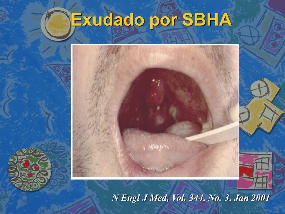 Exudado por SBHA N Engl J Med, Vol. 344, No. 3, Jan 2001
