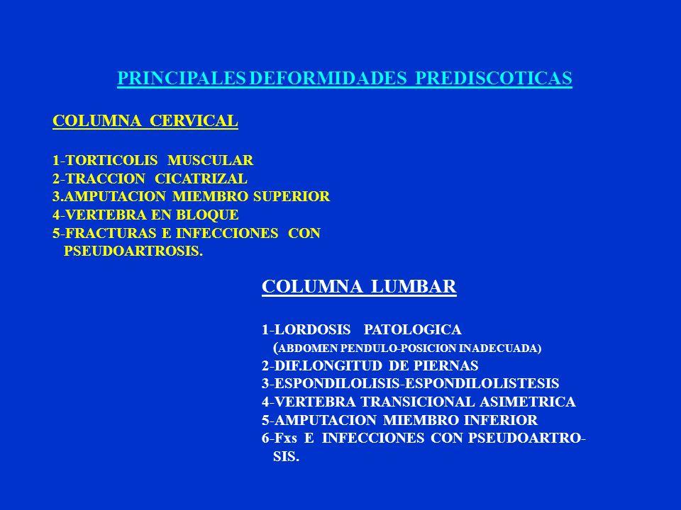 PRINCIPALES DEFORMIDADES PREDISCOTICAS