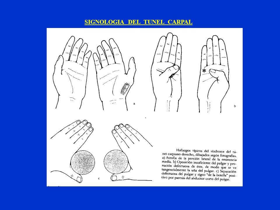 SIGNOLOGIA DEL TUNEL CARPAL
