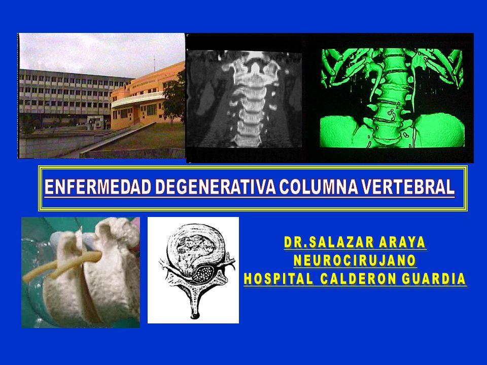 ENFERMEDAD DEGENERATIVA COLUMNA VERTEBRAL HOSPITAL CALDERON GUARDIA