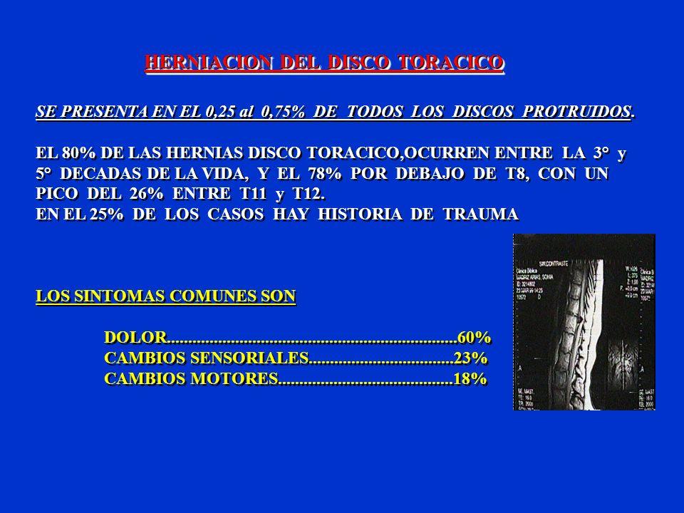 HERNIACION DEL DISCO TORACICO