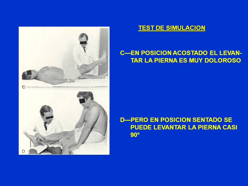 TEST DE SIMULACIONC—EN POSICION ACOSTADO EL LEVAN- TAR LA PIERNA ES MUY DOLOROSO. D—PERO EN POSICION SENTADO SE.