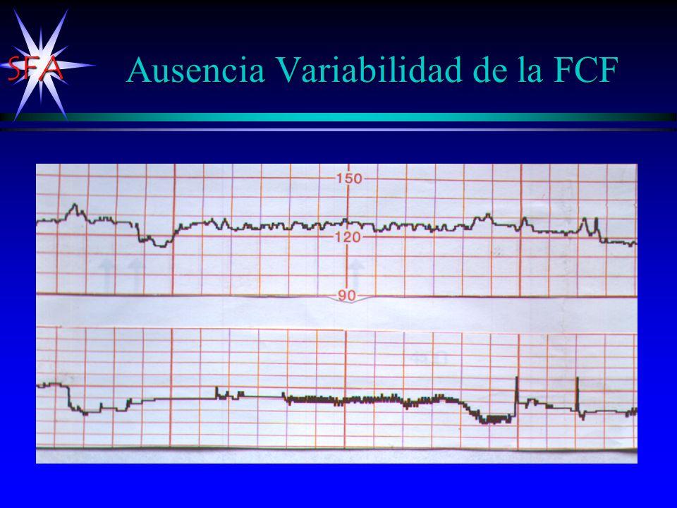 Ausencia Variabilidad de la FCF