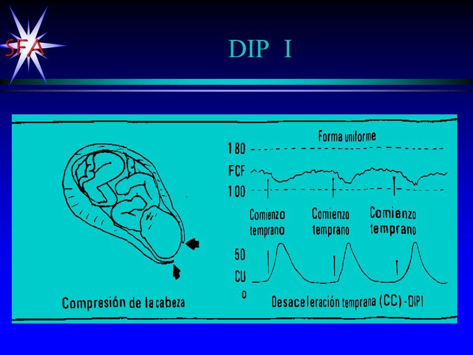 DIP I Con inicio de la contracción uterina comienza la disminución de la FCF.