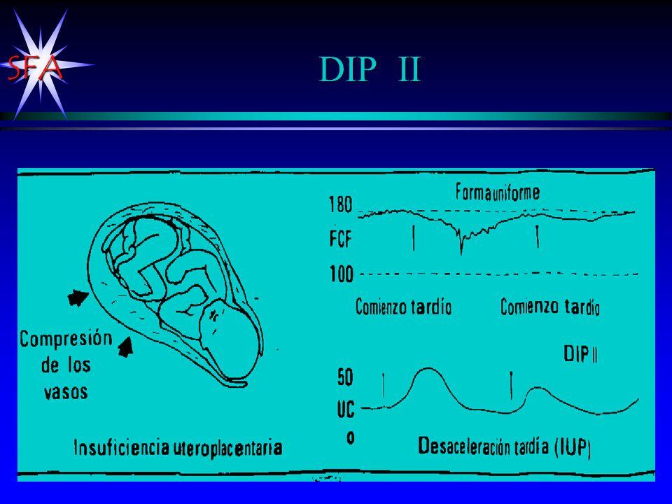 DIP II La placenta no es suficiente para oxigenar al bebé.