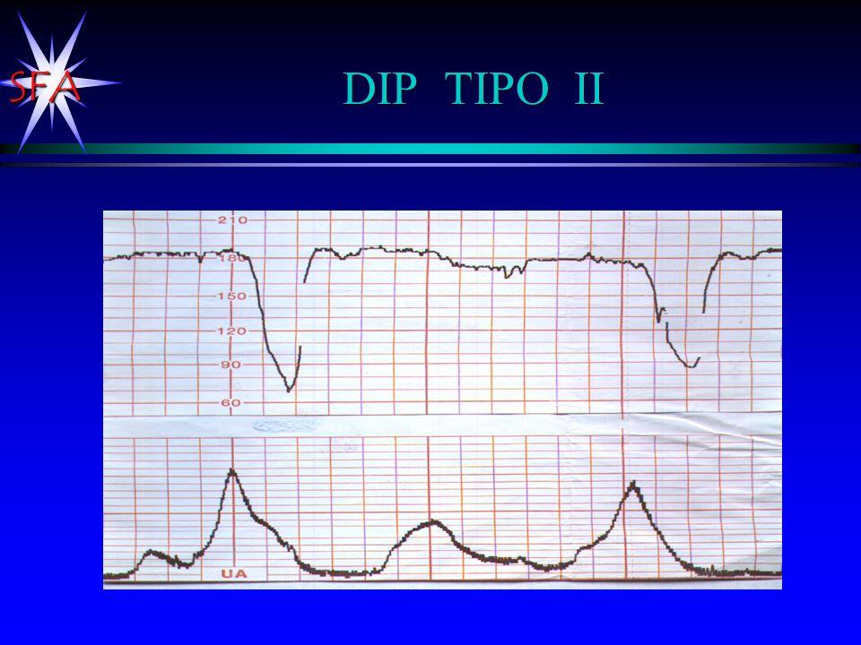 DIP TIPO II Disminución FCF posterior a la contracción (apnea de la contracción).