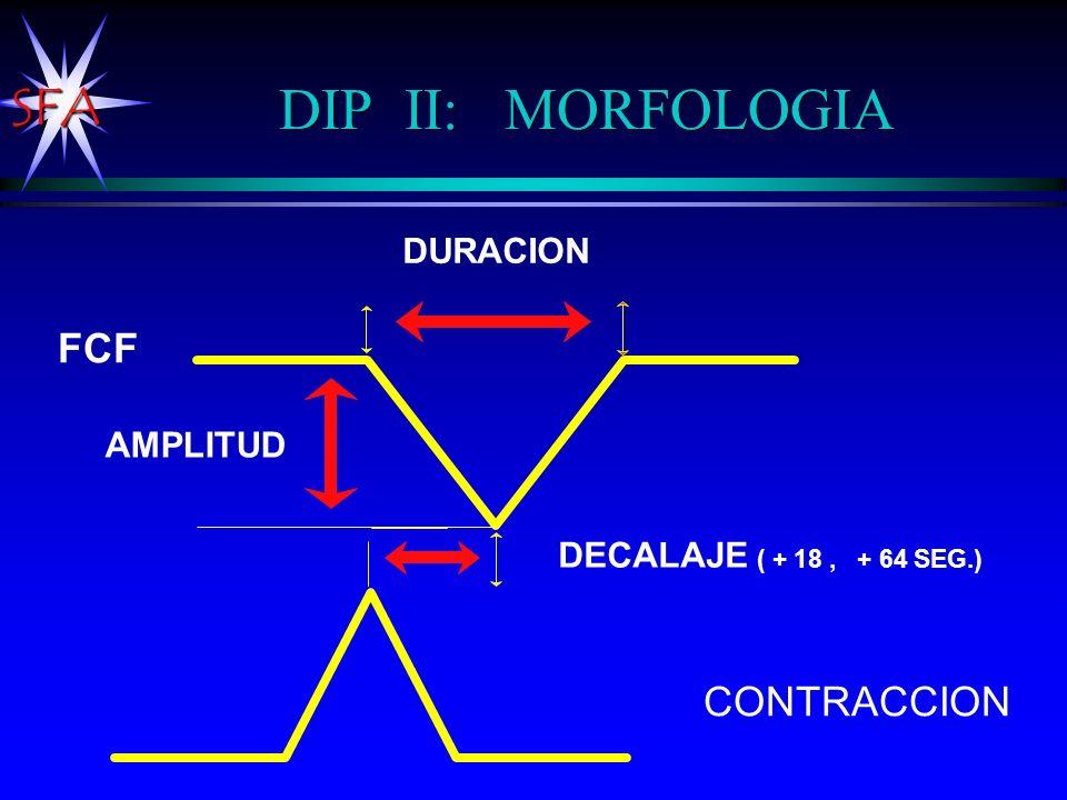 DIP II: MORFOLOGIA FCF CONTRACCION DURACION AMPLITUD