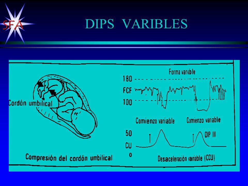 DIPS VARIBLES Por problemas de compresión del cordón.