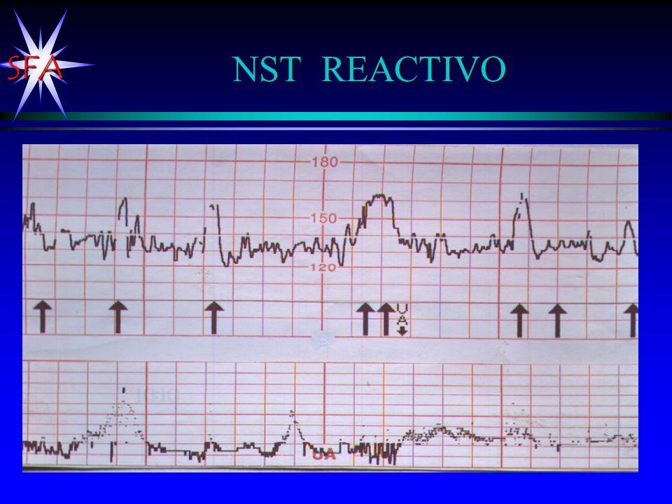 NST REACTIVO Como es un trazo con contractilidad uterina ya no sería NST, sino un CST ( )
