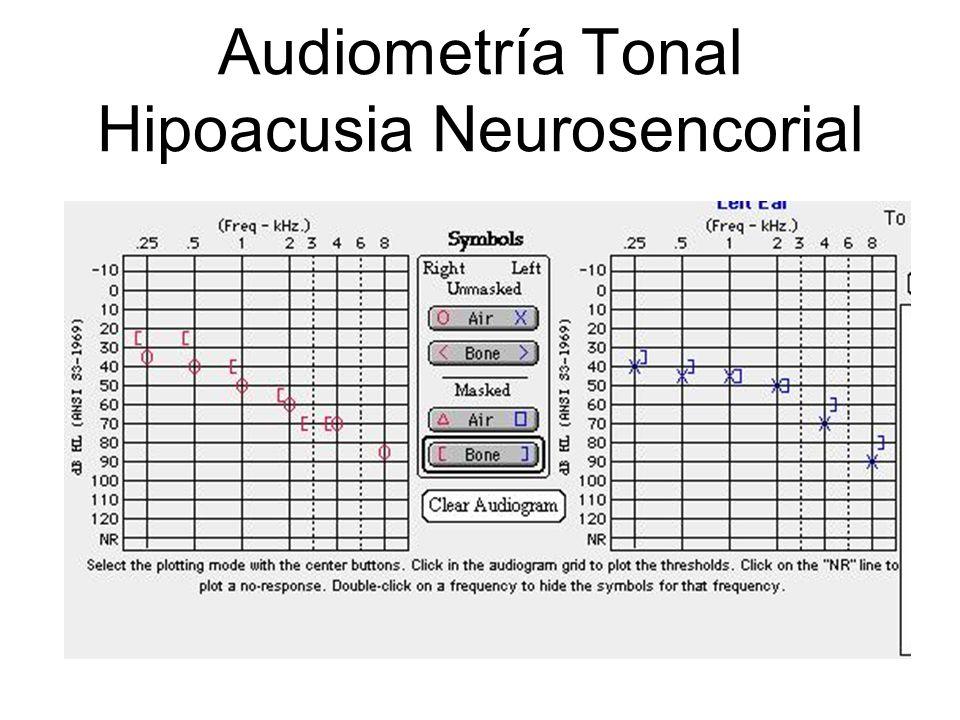 Audiometría Tonal Hipoacusia Neurosencorial