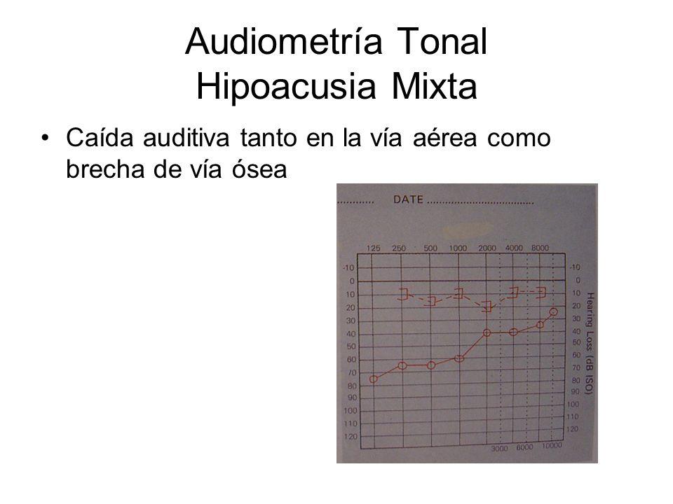 Audiometría Tonal Hipoacusia Mixta