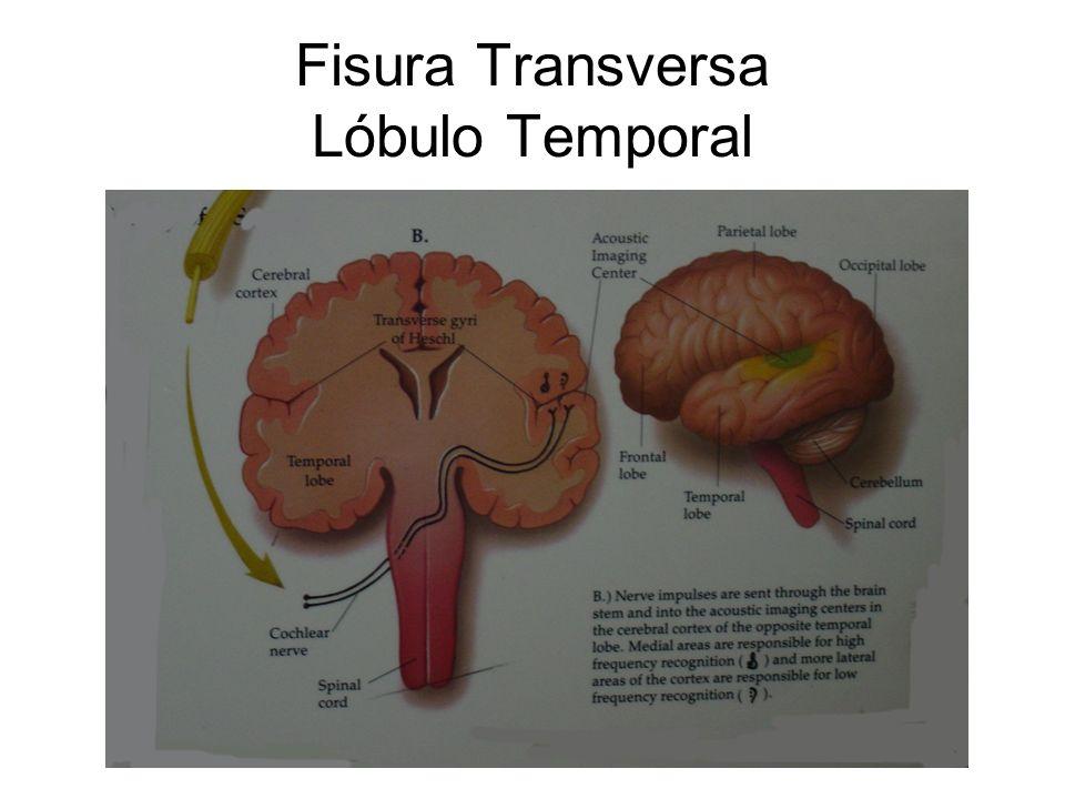 Fisura Transversa Lóbulo Temporal