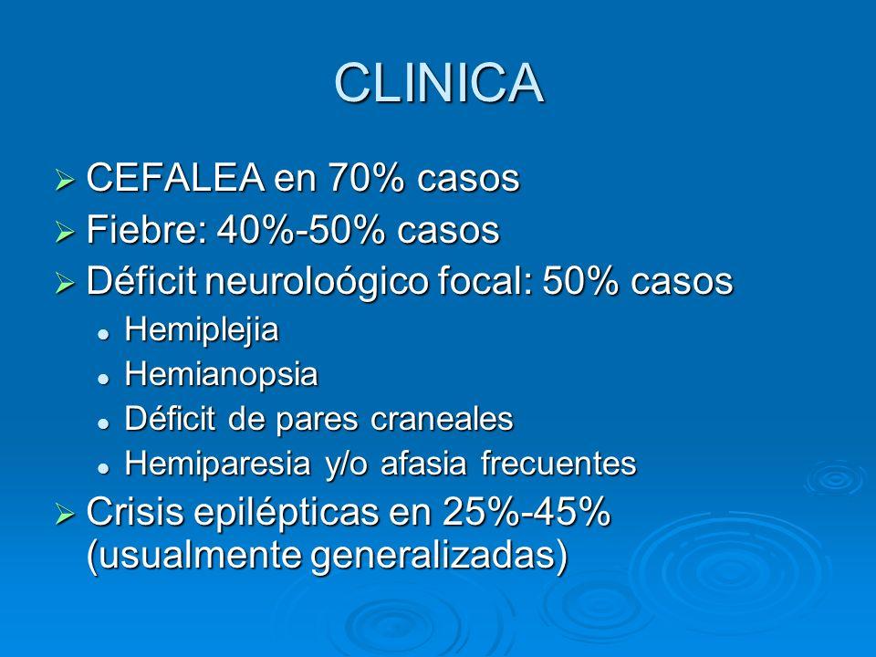 CLINICA CEFALEA en 70% casos Fiebre: 40%-50% casos