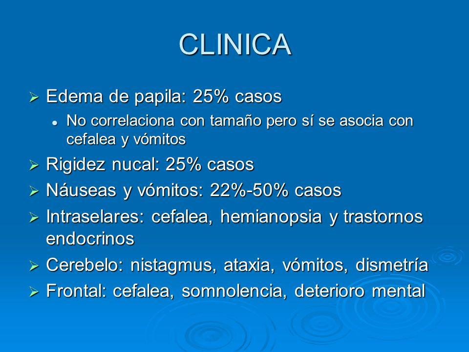 CLINICA Edema de papila: 25% casos Rigidez nucal: 25% casos