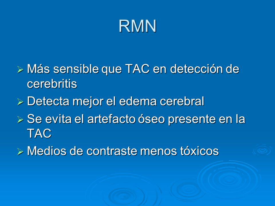 RMN Más sensible que TAC en detección de cerebritis