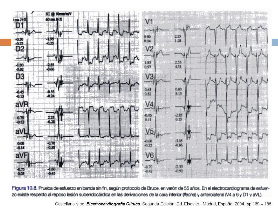 Castellano y cc. Electrocardiografía Clínica. Segunda Edición. Ed