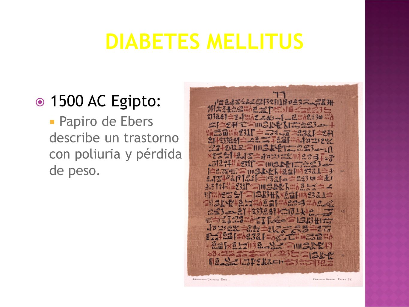 Diabetes Mellitus 1500 AC Egipto: