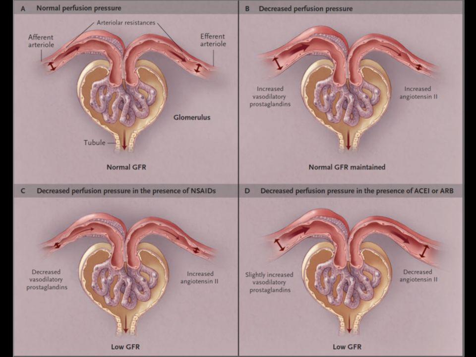 Figure 2. Intrarenal Mechanisms for Autoregulation of the Glomerular Filtration Rate under Decreased Perfusion Pressure and Reduction of the Glomerular Filtration Rate by Drugs.