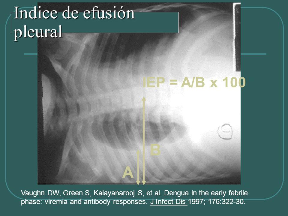 Indice de efusión pleural