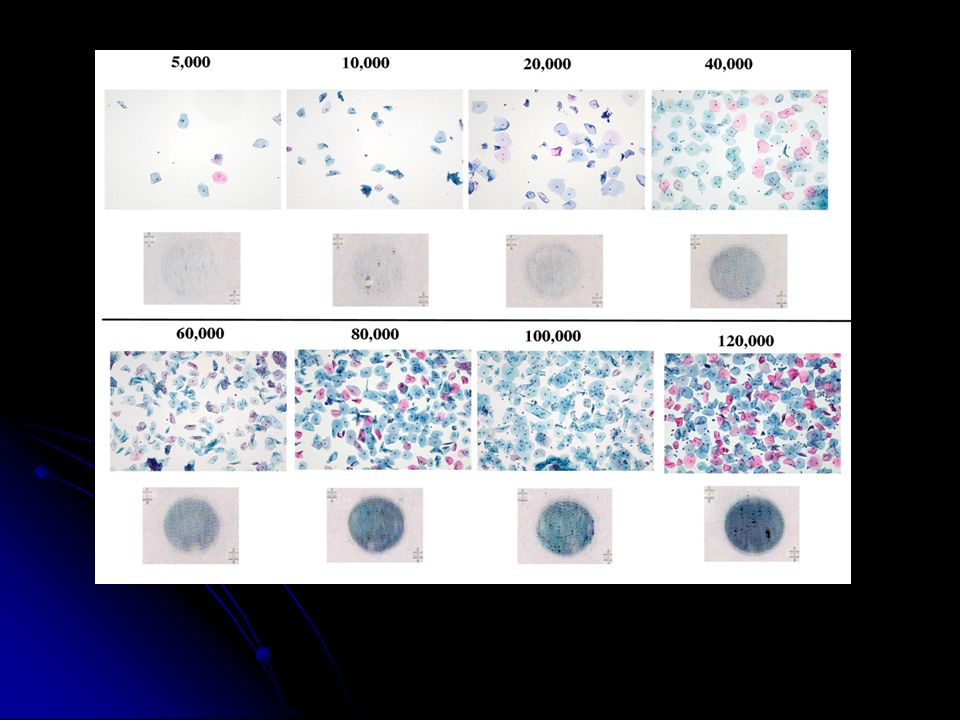 This photograph compares the matched gross slide to the corresponding cellularity assessment. On average, an adequate SurePath slide should contain 40,000-70,000 cells per slide.
