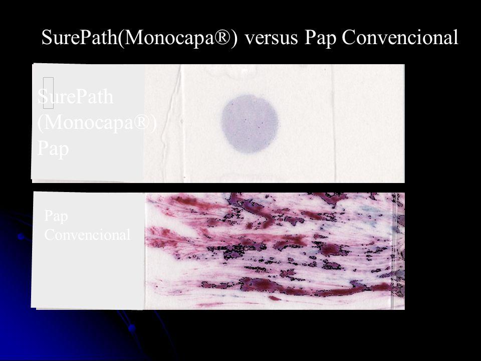SurePath(Monocapa®) versus Pap Convencional