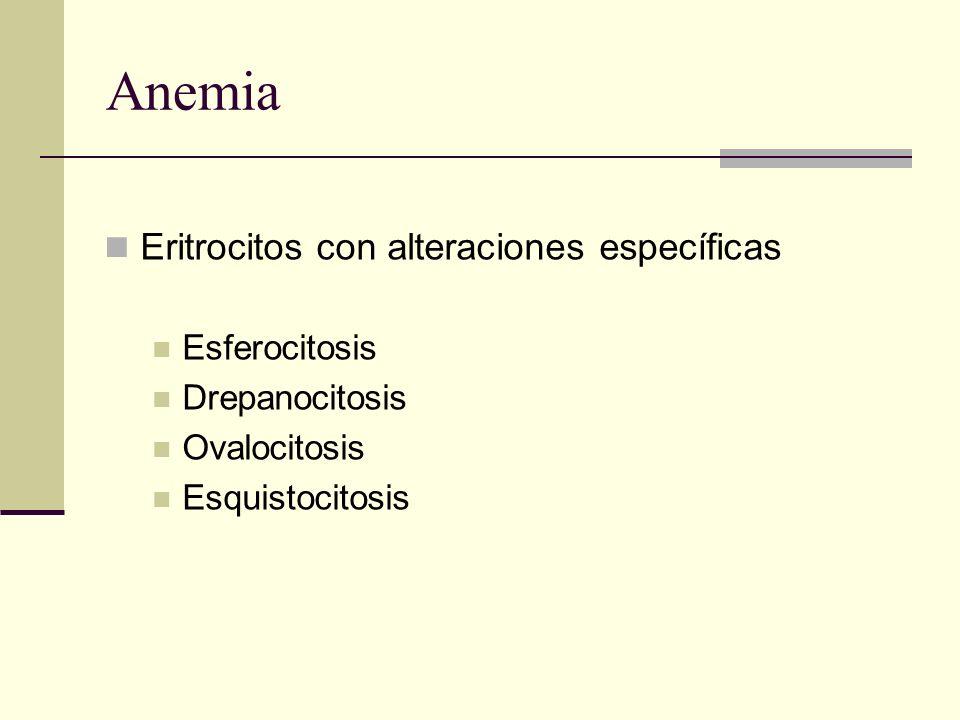 Anemia Eritrocitos con alteraciones específicas Esferocitosis