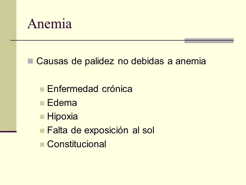 Anemia Causas de palidez no debidas a anemia Enfermedad crónica Edema