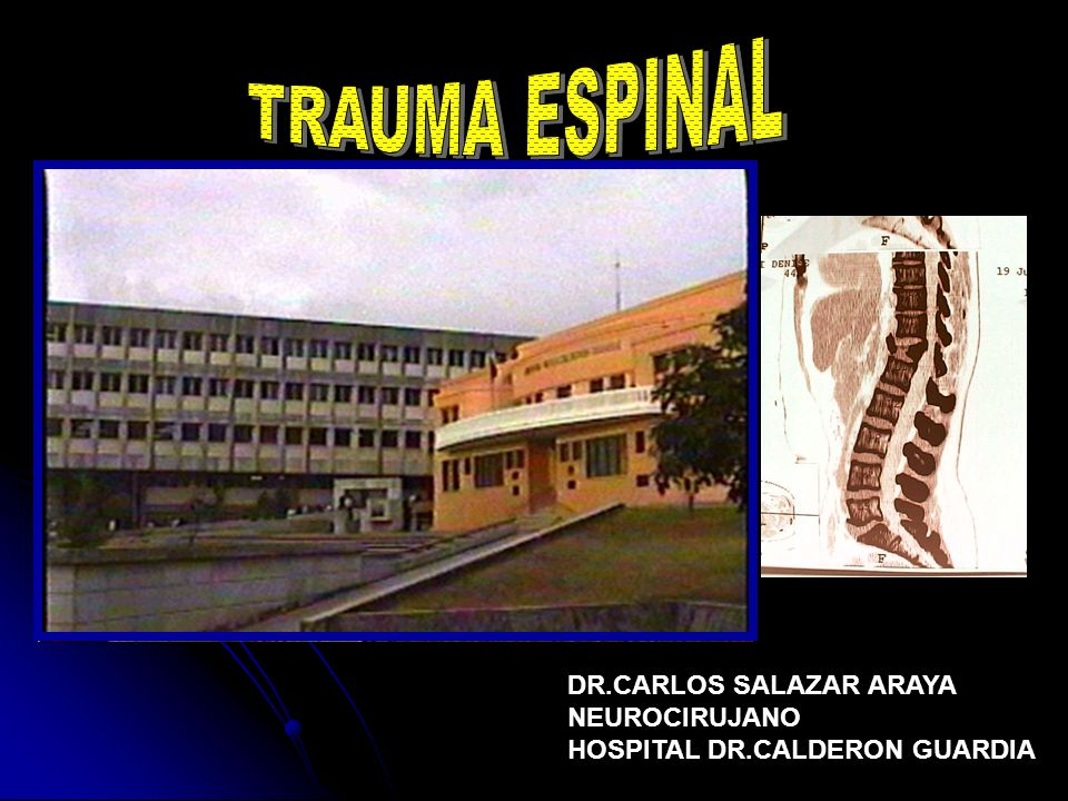 TRAUMA ESPINAL DR.CARLOS SALAZAR ARAYA NEUROCIRUJANO