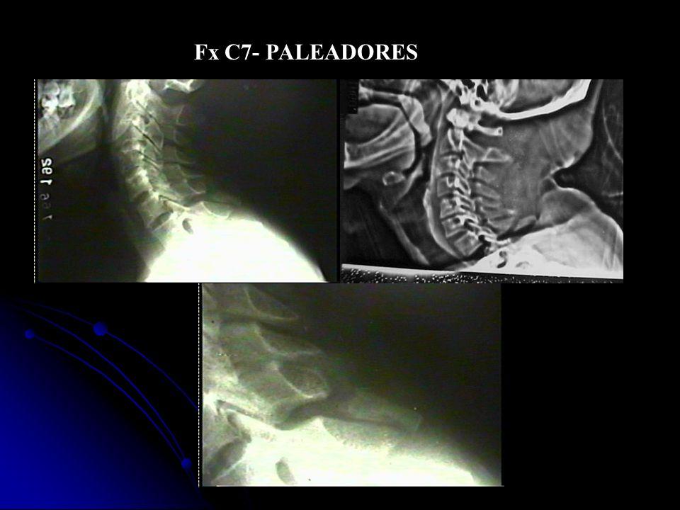Fx C7- PALEADORES