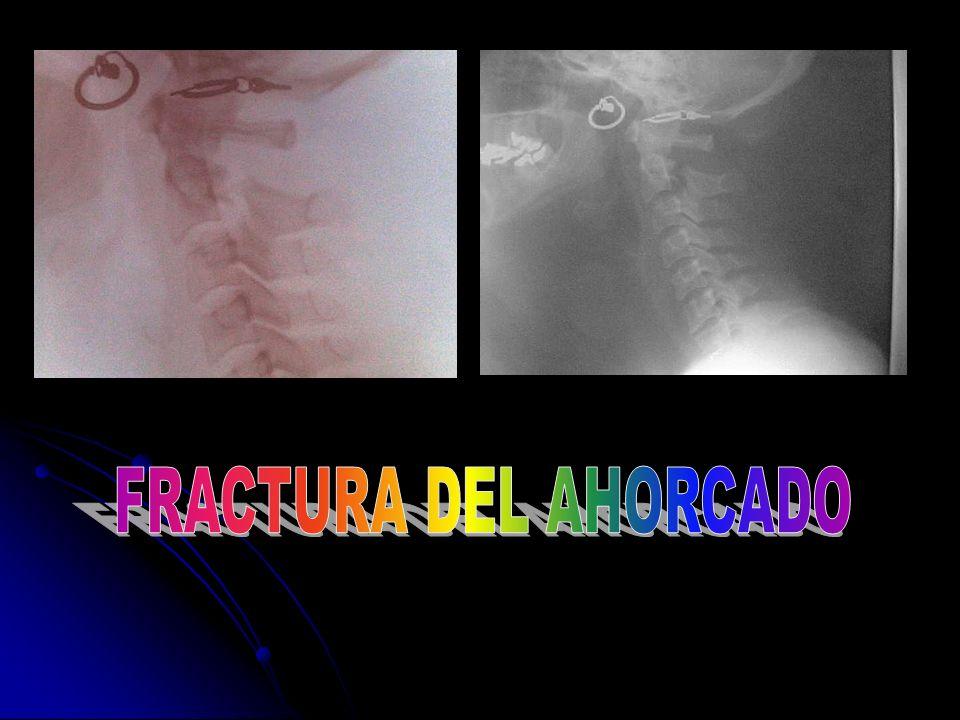 FRACTURA DEL AHORCADO