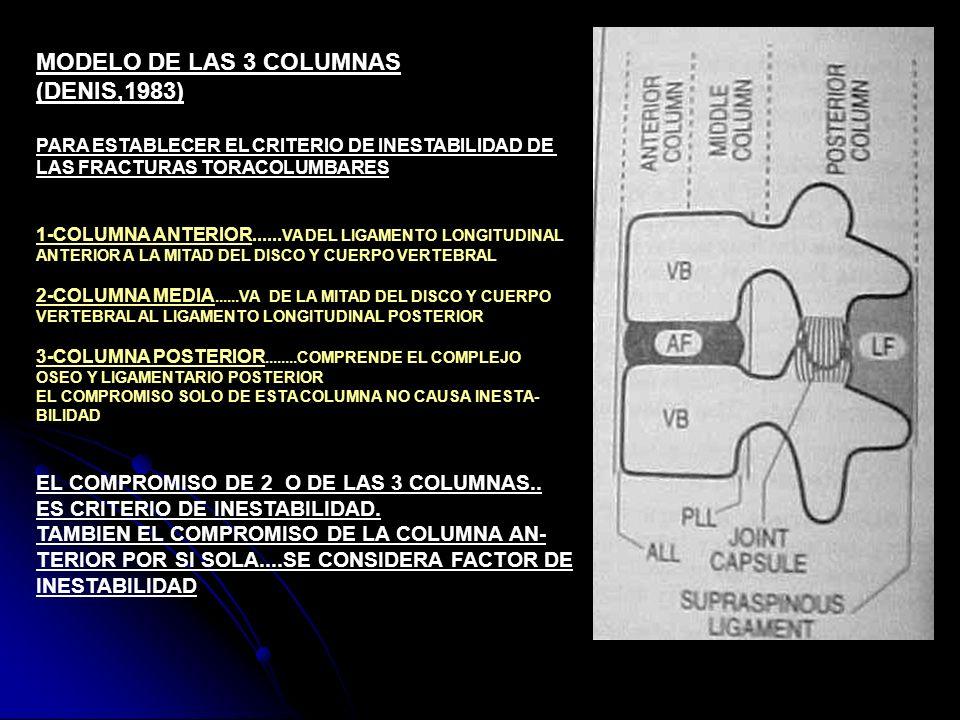 MODELO DE LAS 3 COLUMNAS (DENIS,1983)