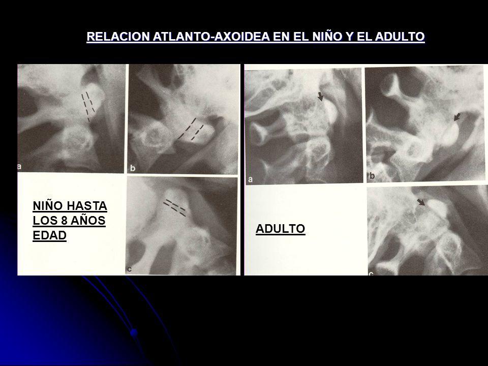 RELACION ATLANTO-AXOIDEA EN EL NIÑO Y EL ADULTO