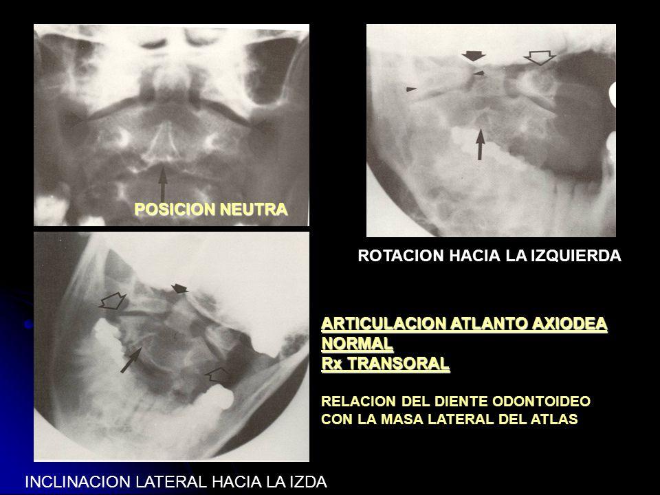 ROTACION HACIA LA IZQUIERDA