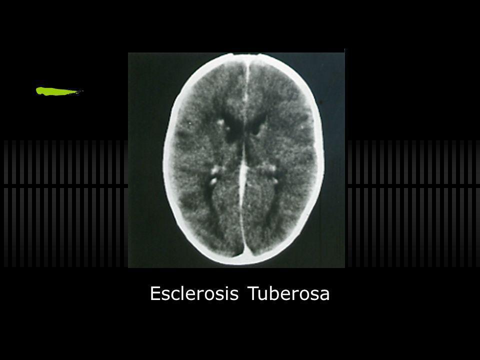 Esclerosis Tuberosa