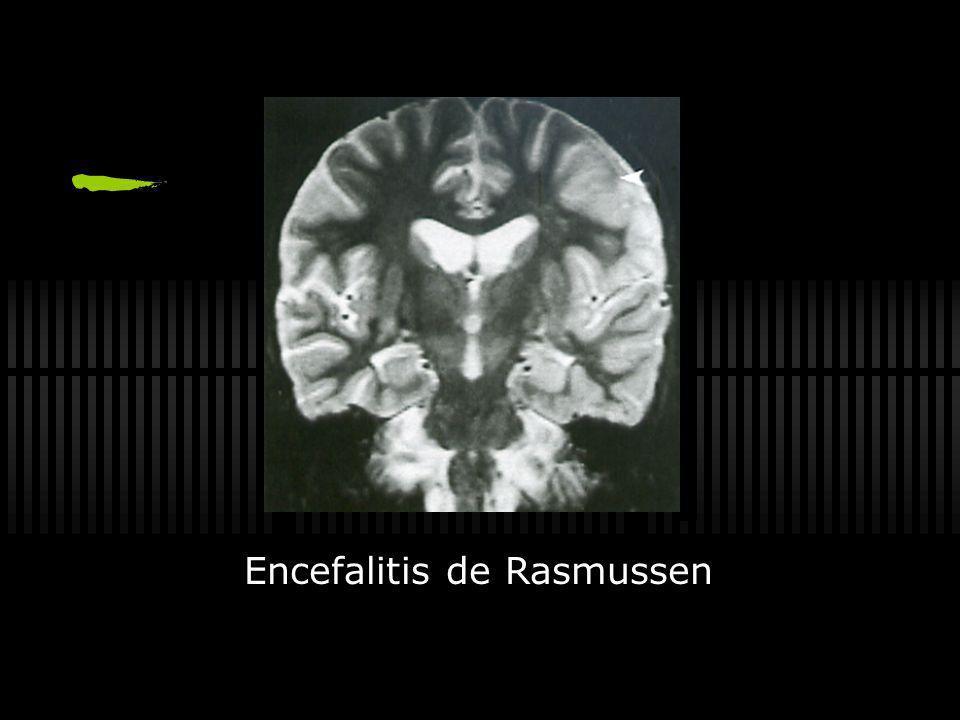 Encefalitis de Rasmussen