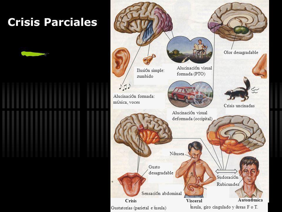 Crisis Parciales Olor desagradable Alucinación visual formada (PTO)