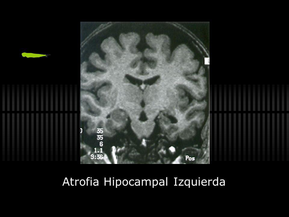 Atrofia Hipocampal Izquierda
